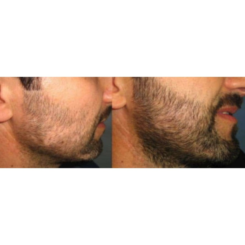 http://www.zabavni-izdelki.si/image/cache/catalog/aa1/beard-grow-xl-before-and-after-800x800.jpg